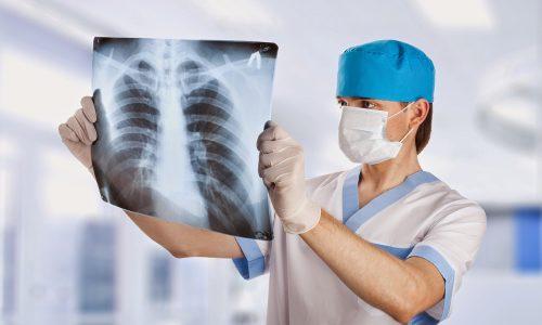 Sanità: le Marche prima regione con un sistema radiologico completamente dematerializzato